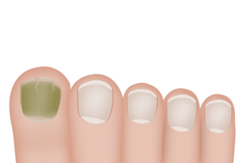 """Understanding """"Green"""" Nail Stains"""