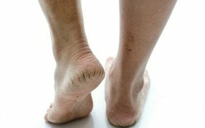 Quick Tips for Dry Cracked Heels